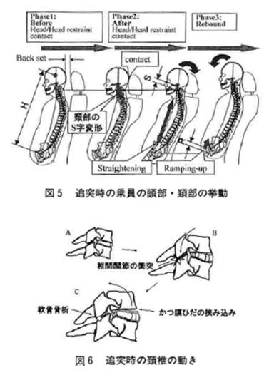 交通事故におけるむち打ち損傷問題 第2版